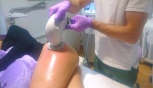 Effektive Behandlung Schwangerschaftsstreifen bei Schöner Körper-the easy way of beauty